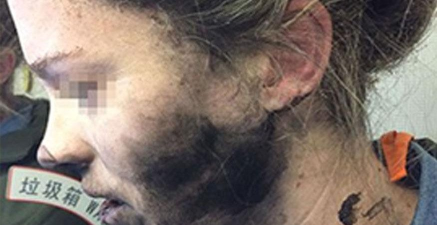 Headphone explosion 875x450 - Woman Suffers Burns as Headphones Catch Fire During Flight to Australia