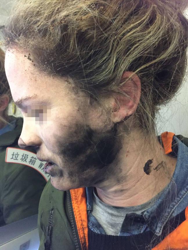 Passenger injured by exploding headphones