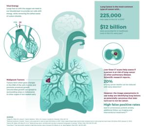 lung illustration web 3 - Data scientists compete to create cancer-detection algorithms