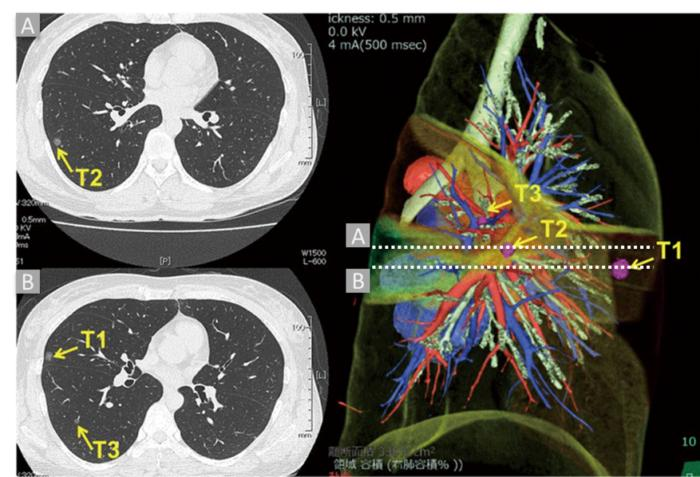 nlst data ct scan image 100721274 large - Data scientists compete to create cancer-detection algorithms